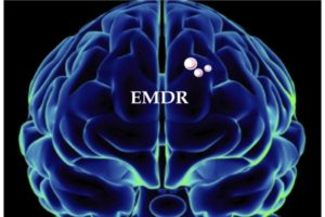 Emdr Treatment